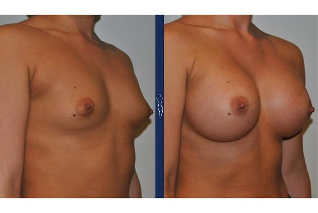 23 year old caucasian woman breast augmentation right oblique