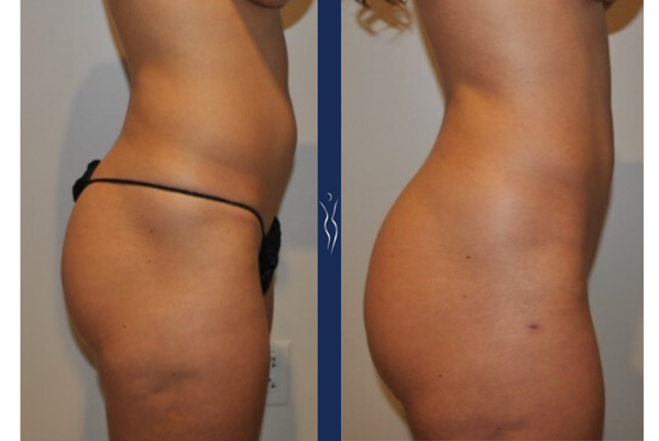 27 year old caucasian lady VASER liposuction and Renuvion with Brazilian Butt Lift right lateral-1