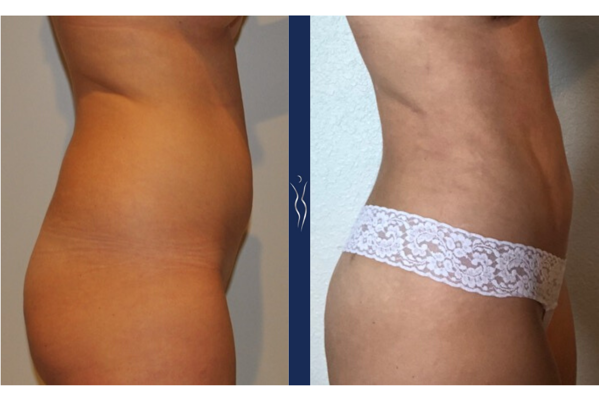 29 year old caucasian lady VASER liposuction and Renuvion with Brazilian Butt Lift right lateral