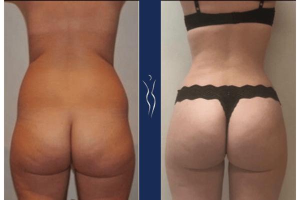 32 year old caucasian lady 3 months Brazilian Butt lift back