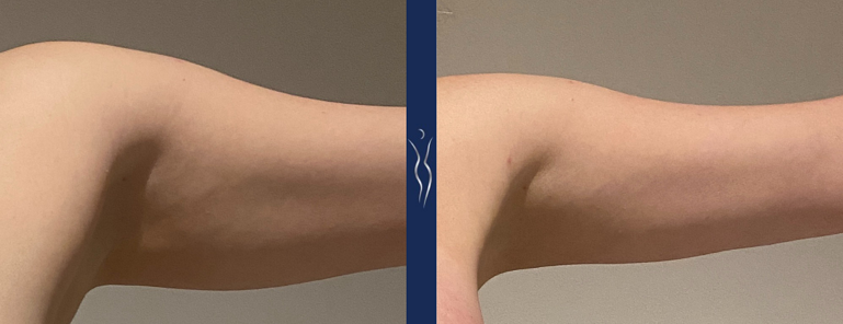 33 year old lady arm lipo & Renuvion 3 month left arm front-1