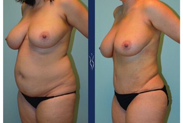 34  year old caucasian woman tummy tuck with core liposuction left oblique