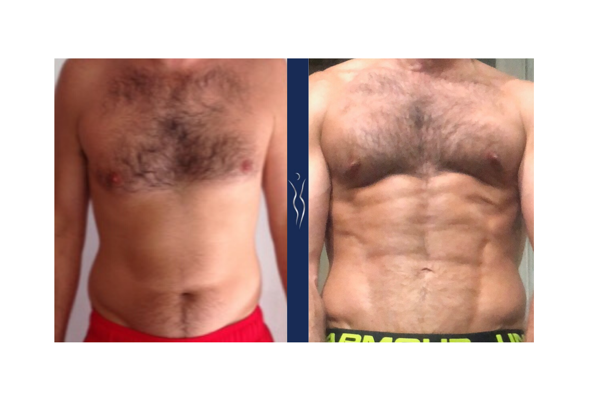 35  year old caucasian man high definition VASER core liposuction