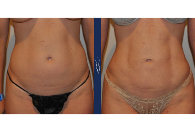 36 year old caucasian lady VASER liposuction and Renuvion front