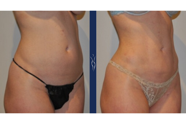 36 year old caucasian lady VASER liposuction and Renuvion right oblique
