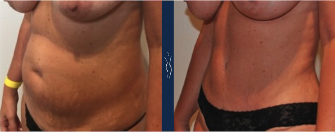 38 year old caucasian lady 4 months tummy tuck left oblique no white space