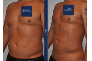 43  year old caucasian man medium definition VASER core liposuction left oblique