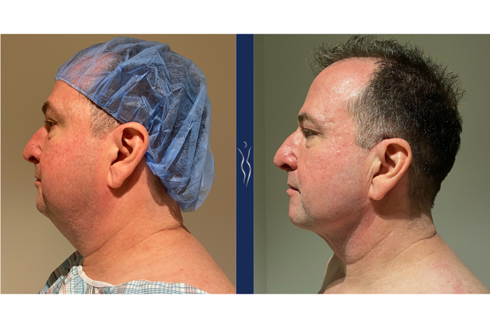 51 year old gentleman VASER liposuction and Renuvion neck 4 months left lateral