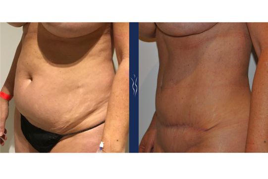 53 year old caucasian lady 4 months tummy tuck left oblique arms forward