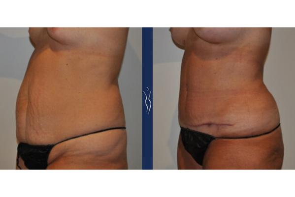55  year old caucasian woman tummy tuck with core liposuction left oblique arms forward