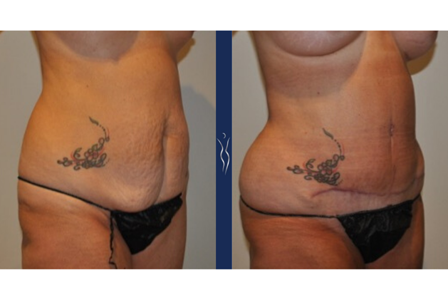 55  year old caucasian woman tummy tuck with core liposuction right oblique arms back