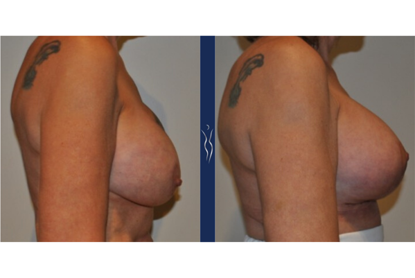 55 year old caucasian lady breast implant exchange with lift right lateral
