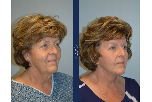 57 year old caucasian woman face and neck lift with upper eye lid lift right oblique