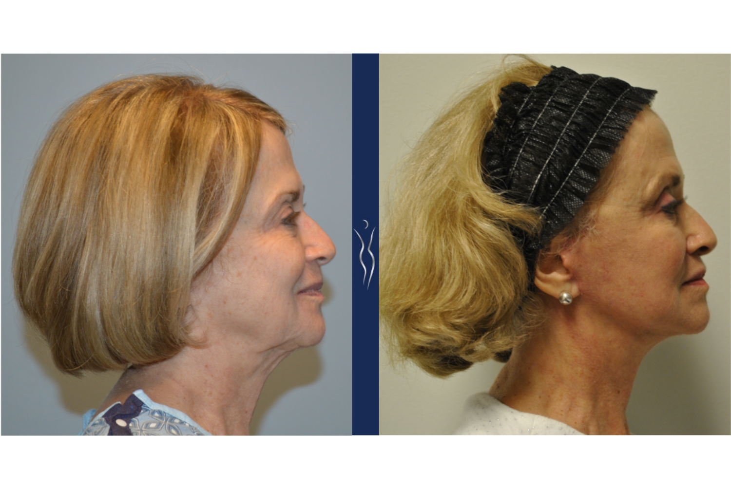 69 year old caucasian woman face and neck lift with upper eye lid lift, fat transfer to the face, and erbium skin resurfacing right lateral