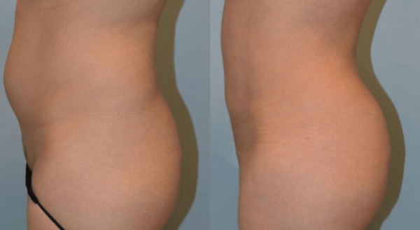 How to Shape Your Butt: Fat, Fillers, or Implants?