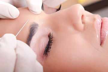 Top 5 Ways Botox Will Change Your Life in 2019