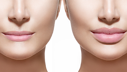 Which Dermal Filler Is Best for Lip Augmentation?