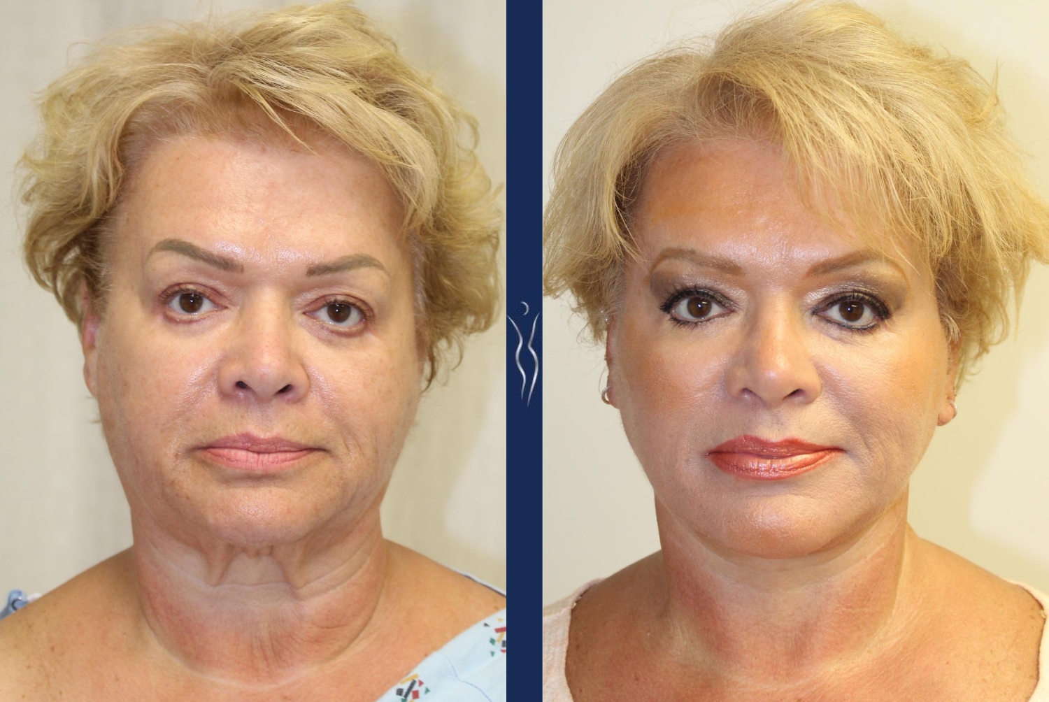 53 year old lady facelift, platysmaplasty front - Nease