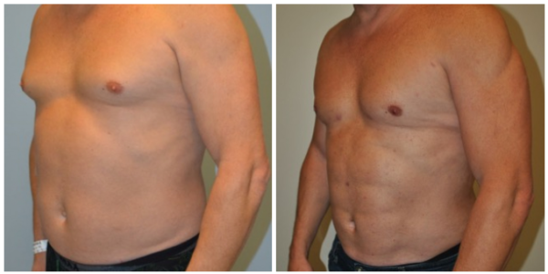 VIEW MOEW PATIENT RESULTS